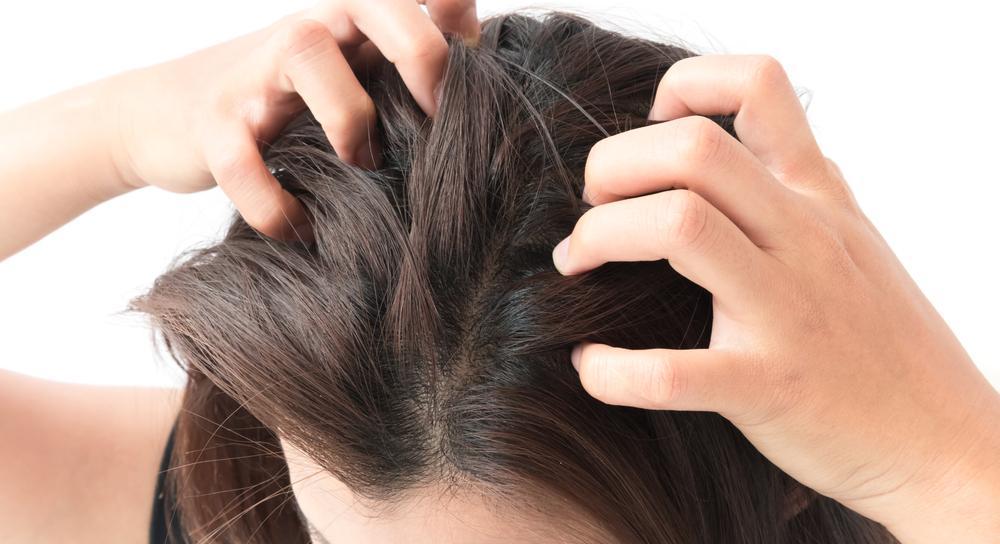 10 Penyebab Kulit Kepala Gatal (Bukan Cuma Karena Ketombe) | KURIO