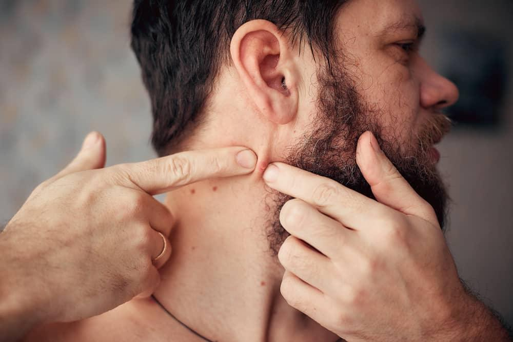 Penyebab Jerawat Di Leher Plus Cara Ampuh Menghilangkannya Kurio